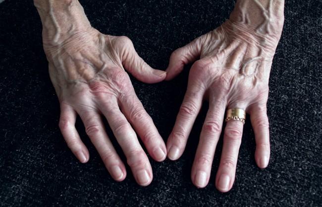 Ulei Canabis Artrită